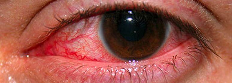глаз 4